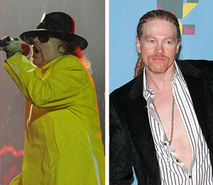 Axl Rose's Weight Rises