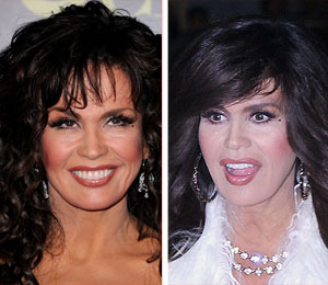 Marie Osmond's Camp on Plastic Surgery Rumors: 'Not Worth Commenting'