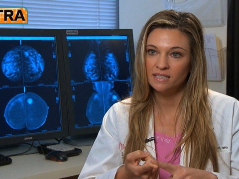 Breast Cancer: Five Tips to Reduce the Risks
