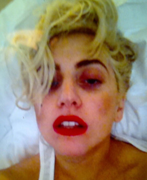 Video! Lady Gaga Fires Back at Madonna, Tweets 'Woozy' Concussion Photo