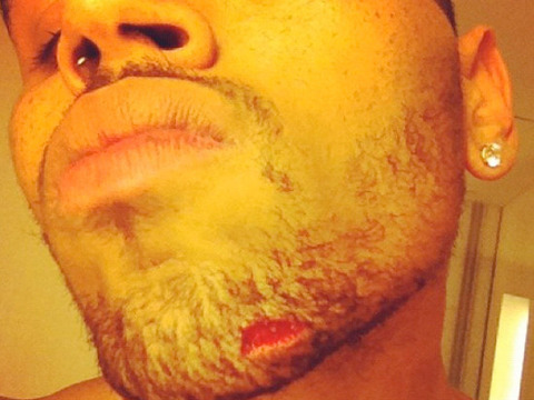 Pic! Chris Brown's Nasty Injury after Reported Bottle Bash Up