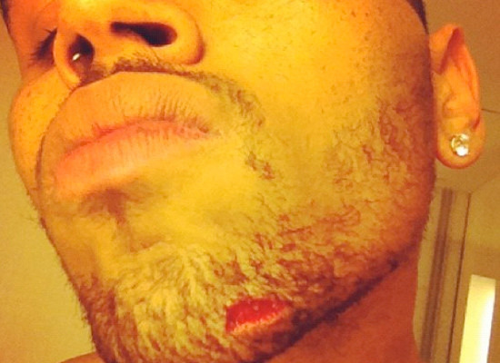 Pic! Chris Brown's Nasty Injury after Reported Bott