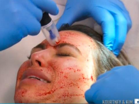 Kim Kardashian Gets Bizarre Vampire Facial with Her Own Blood