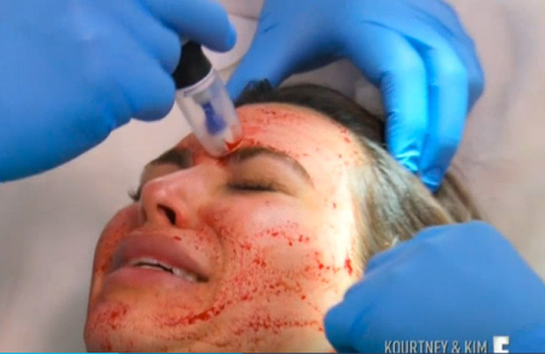 Kim Kardashian Gets Bizarre Vampire Facial with Her Own Blood