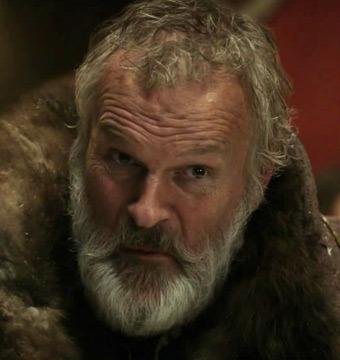 'Game of Thrones' Actor's Ear Bitten Off in Hotel Attack