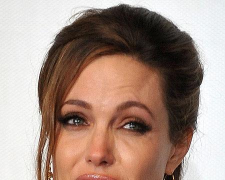Angelina Jolie to Undergo More Surgery, Wedding May Happen Soon
