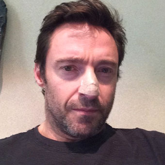 Hugh Jackman Reveals Cancer Scare