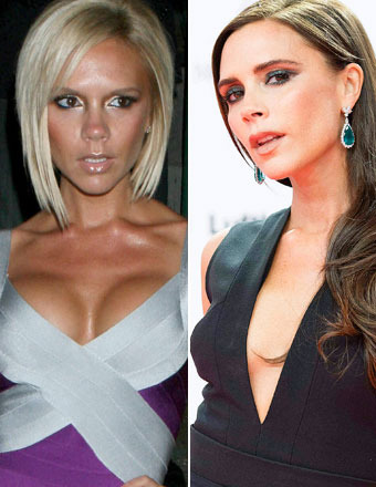 What Happened to Victoria Beckham's Breast Implants?