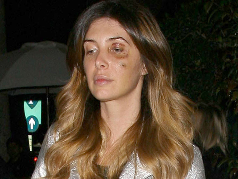 Ouch! How Did Kim K's BFF Brittny Gastineau Get That Nasty Black Eye?