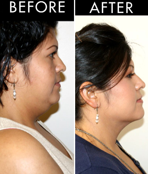 Say Goodbye to Double Chin Fat… Without Surgery!