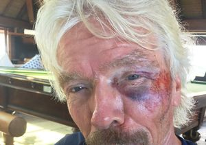 Sir Richard Branson Lucky to Be Alive After Horrific Bike Crash…