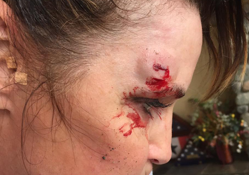 Sarah Palin Trips While Rock-Running and Gashes Face (Warning: Graphic Images)