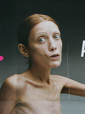 extra scoop model who fought anorexia dies extratvcom